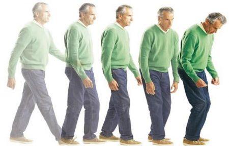 10 dấu hiệu nhận biết sớm của bệnh Parkinson 3