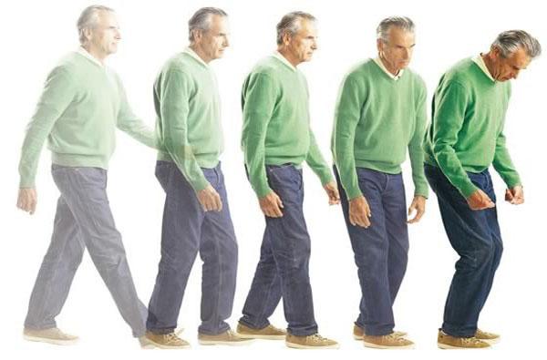 10 dấu hiệu nhận biết sớm của bệnh Parkinson 2
