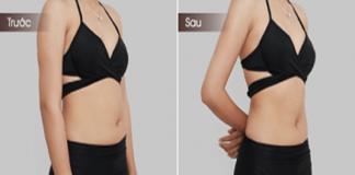 Tổng hợp cách giảm mỡ bụng nhanh và an toàn dành cho nàng béo bụng