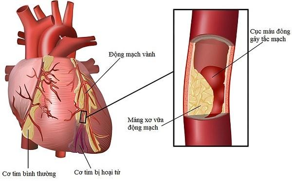 Người bị béo bụng còn ảnh hưởng đến tim