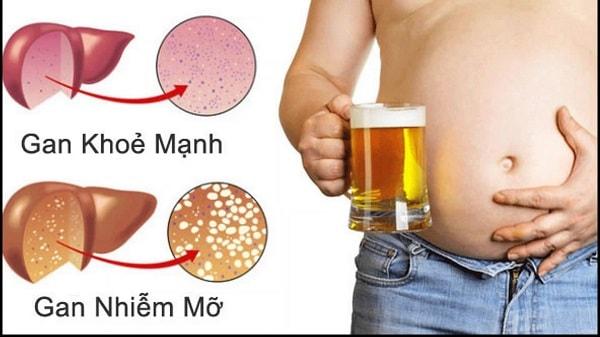 Người béo bụng có nguy cơ gan nhiễm mỡ ở nam giới xuất hiện cao